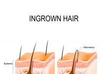 ingrown hair from shaving